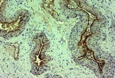 肌に艶を出すプロテオグリカン